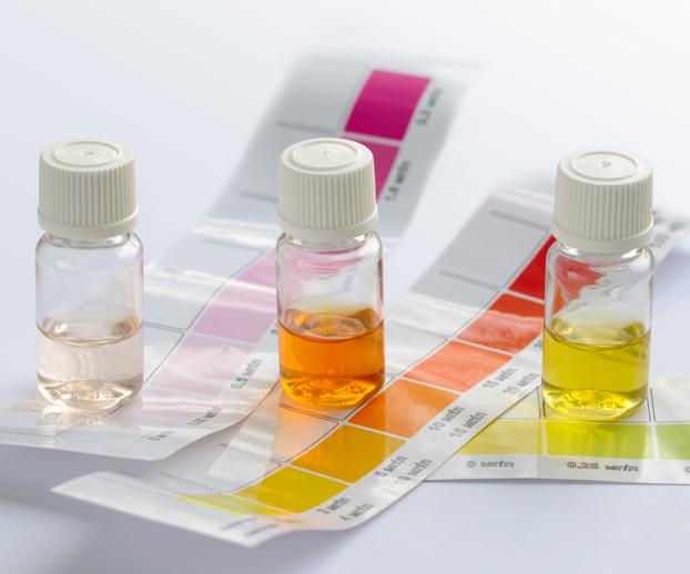 Trois flacons de différentes couleur représentant chacun un test de colorimétrie pour tester pH, TH et TAC